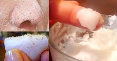 Bicarbonato de sodio y aceite de coco